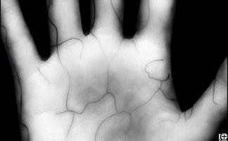 vein scan