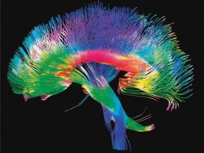 brain connectomics
